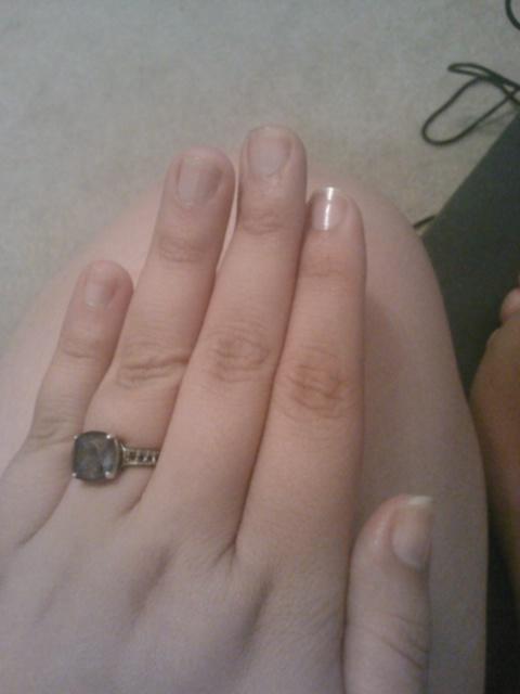 Left hand 10 days